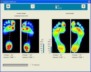 Description: http://www.injuries-clinic-oundle.co.uk/userimages/GAITSCAN%20IMAGES%20007.jpg